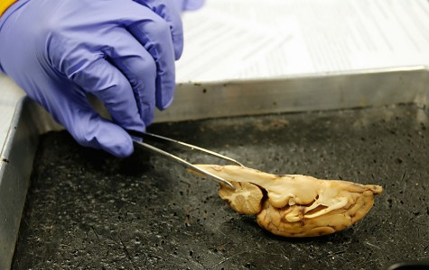 WEEKLY GALLERY: Brain dissection in Anatomy and Physiology