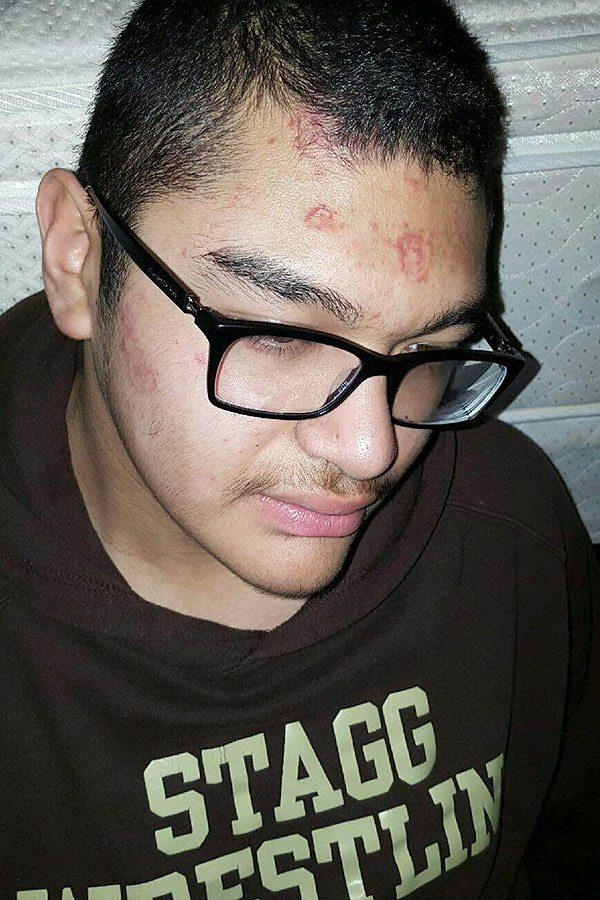 Junior Javier Nunez was one of many diagnosed with ring worm during wrestling season. In order to prevent the spread, he was not allowed to wrestle for more than a month until cleared by a doctor.